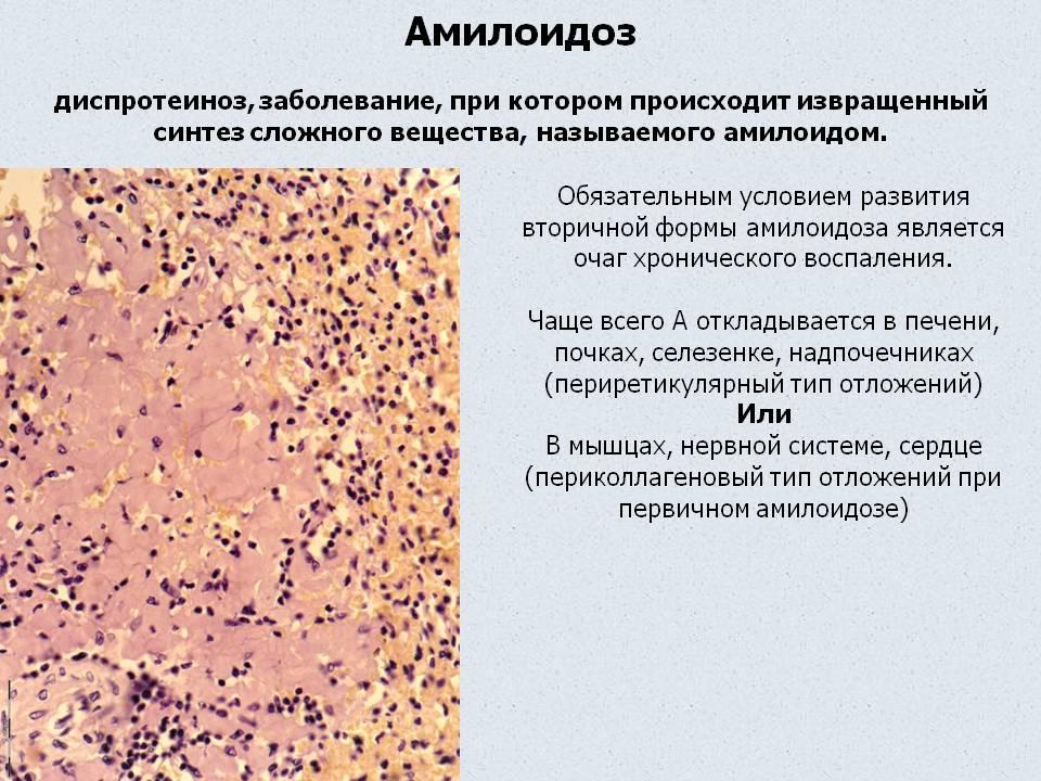 Миелопролиферативное заболевание: понятие, формы и патогенез, диагностика, лечение, прогноз
