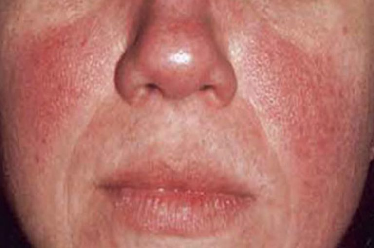 Возрастные проблемы с кожей лица: причины и лечение патологии