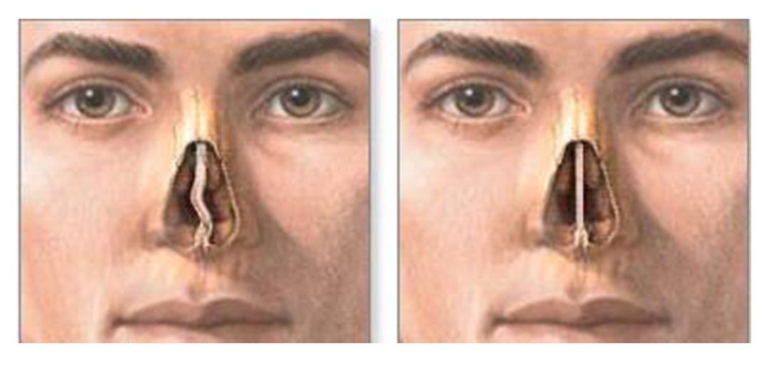 Операция по исправлению носовой перегородки: показания и опасность   food and health