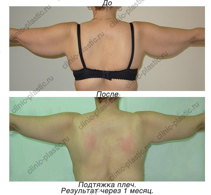 Скидки на увеличение груди
