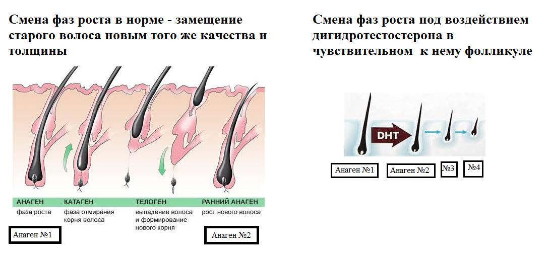 Средства для роста волос на голове у мужчин, популярные препараты, физиотерапия