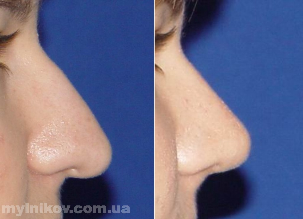 У меня длинный нос