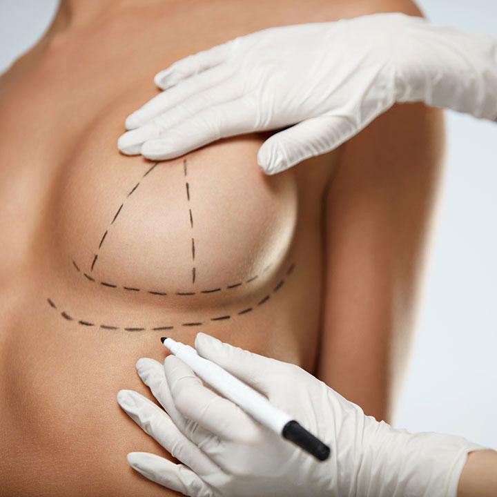 Как понять, что пластика груди — неудачная? описание, фото, рекомендации, что делать