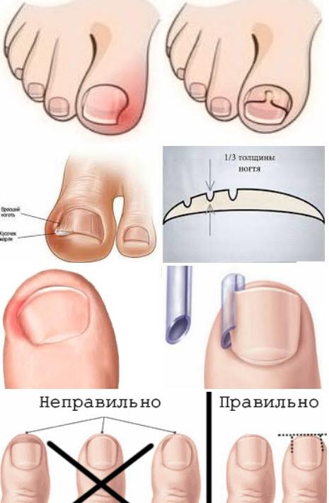 Как лечить вросший ноготь на пальце ноги дома