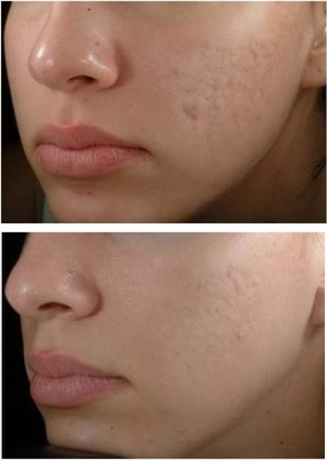 Как убрать рубцы, шрамы на лице: лечение в домашних условиях, народными средствами