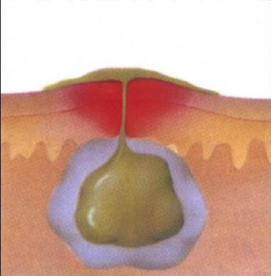 Фурункул и фурункулез. как лечить фурункулы: причины и лечение фурункулеза у детей и взрослых.