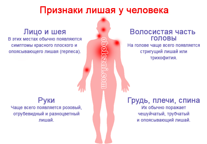 Разноцветный лишай у человека: фото, лечение, симптомы