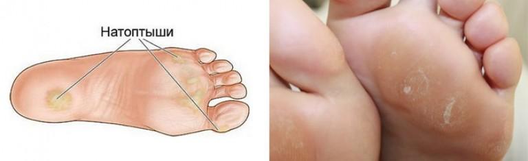 Особенности лечения мозолей на ногах от тесной обуви