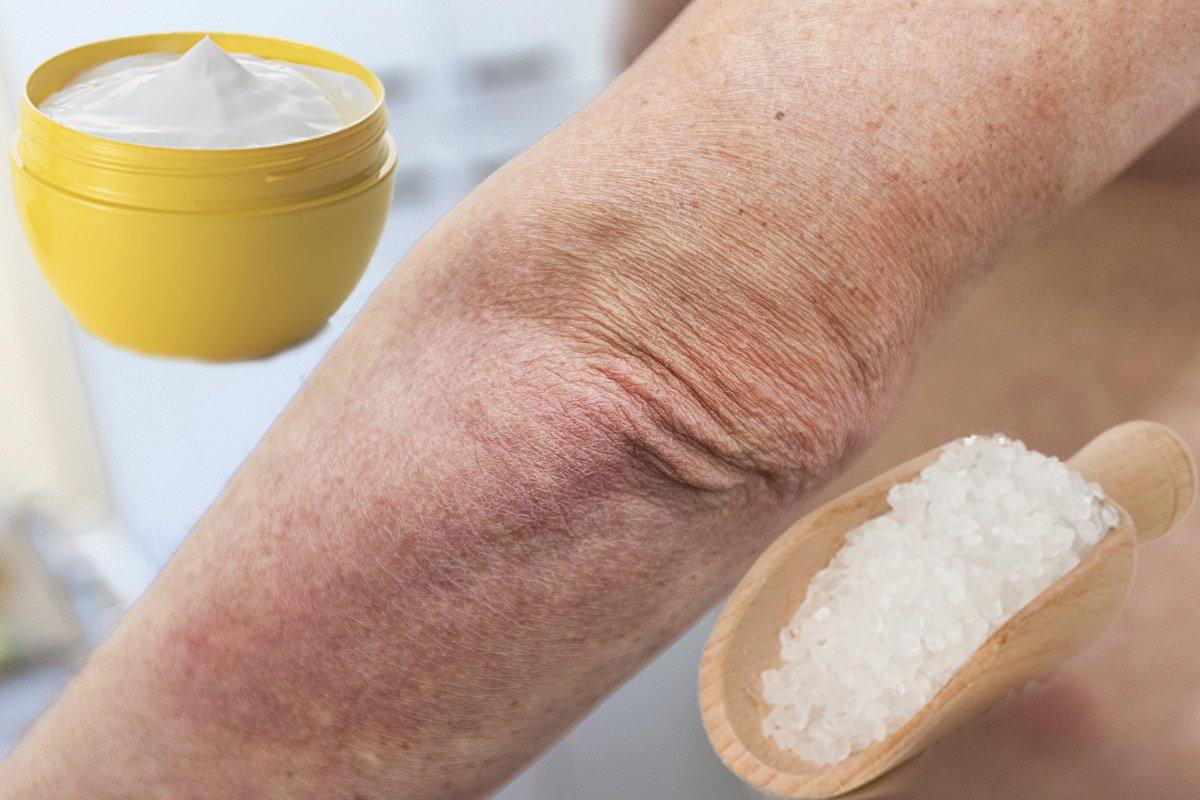 Псориаз: симптомы, лечение и профилактика чешуйчатого лишая