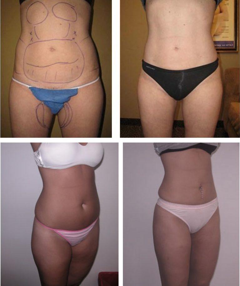 Липосакция (удаление жировых отложений хирургическим путем)