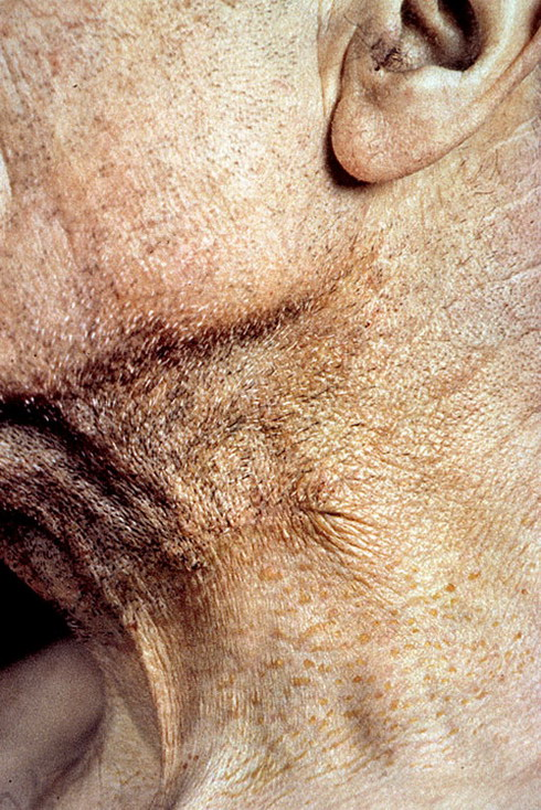 Иммунитет к бляшкам бета-амилоидная вакцина в процессе старения