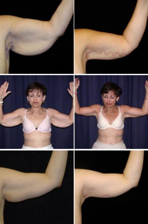 Что делать, если обвисла грудь, и как ее подтянуть?