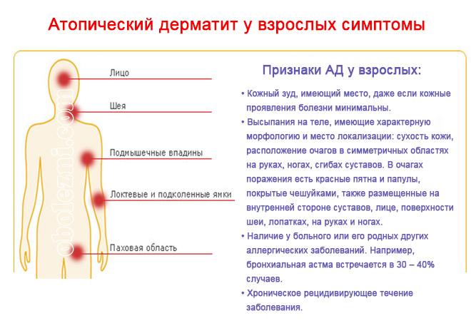 Нейродермит: причины возникновения, психосоматика и лечение
