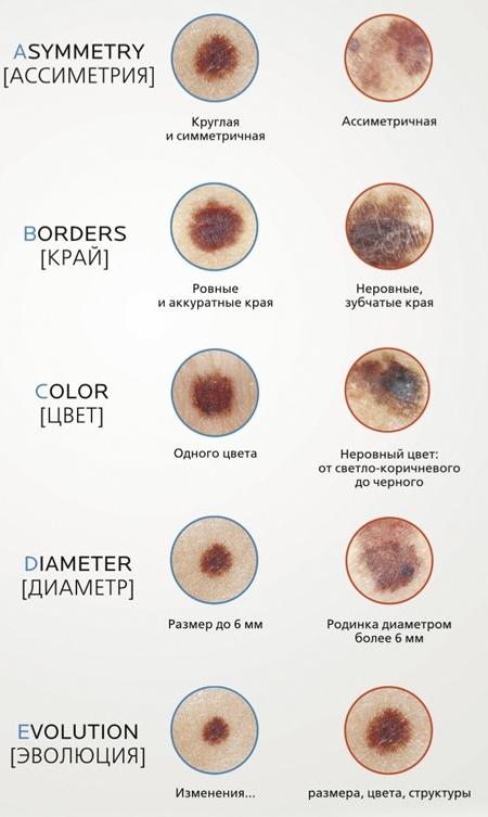 Меланома кожи: как выглядит, первые признаки, симптомы и лечение меланобластомы