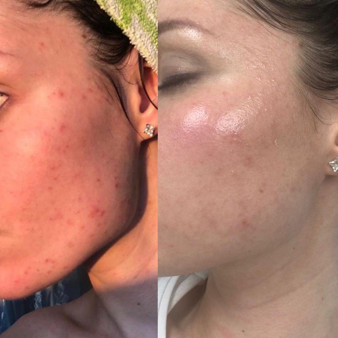 Миндальный пилинг для лица — проведение и уход после шелушения