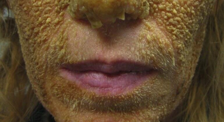 Себорейная (старческая) кератома — причины, лечение, диагностика