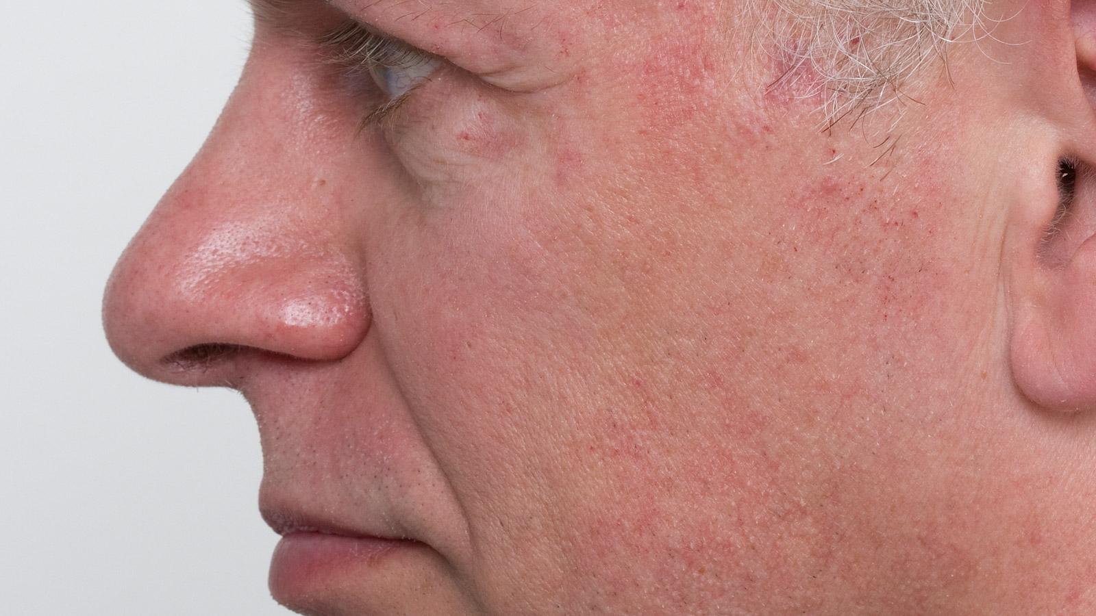 Гиперемия (полнокровие): причины, когда это болезнь, локализации, лечение