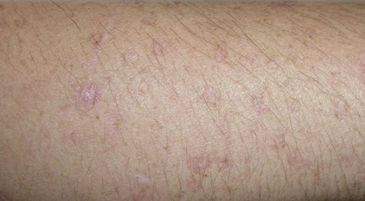 Профилактика рака кожи
