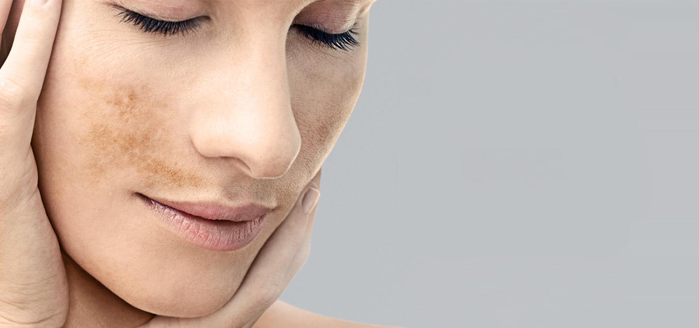 Пигментные пятна на лице и причины их появления, способы лечения