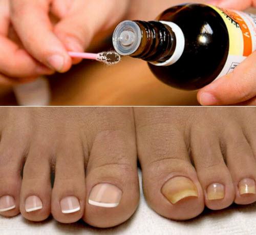 Раствор от грибка ногтей на ногах