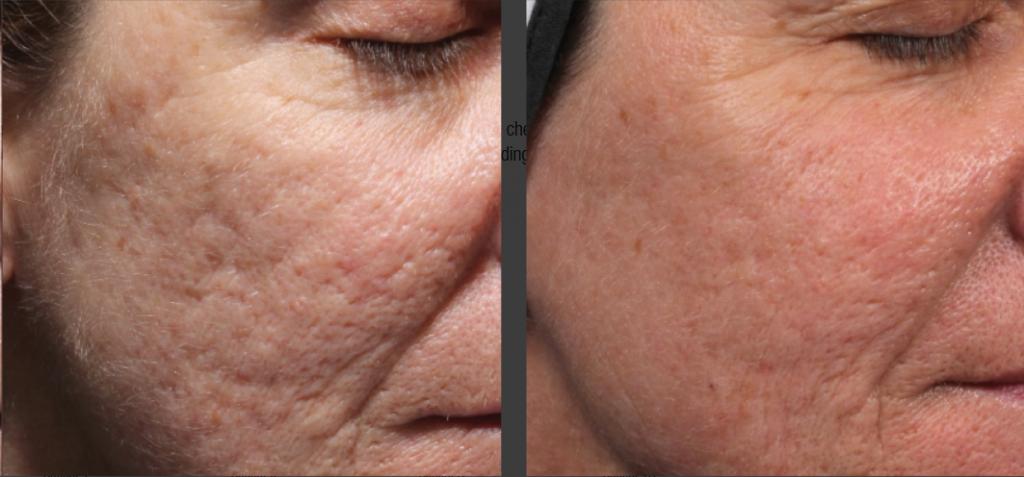 Лечение акне и постакне на лице: аппаратная косметология, препараты, лазером, жидким азотом, холодной плазмой, плазмолифтингом, кремами, гомеопатией, пиявками