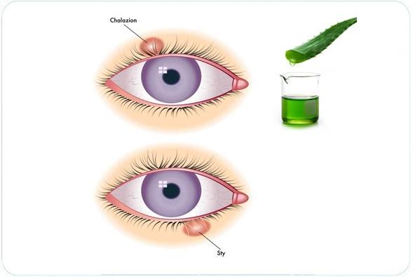 Ячмень на глазу: как лечить в домашних условиях, причины, симптомы + вопросы и отзывы