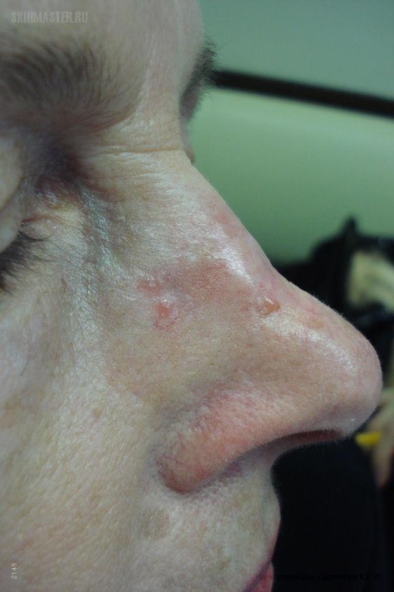 Базалиома – разновидость рака кожи: причины, классификация, симптомы и стадии, методы лечения и отзывы, фото