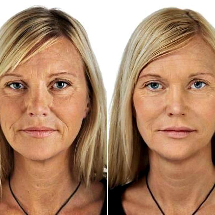 Уколы красоты: 3 варианта, как улучшить внешность