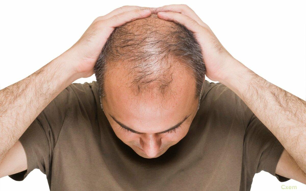 Не все потеряно: как остановить выпадение волос у мужчин