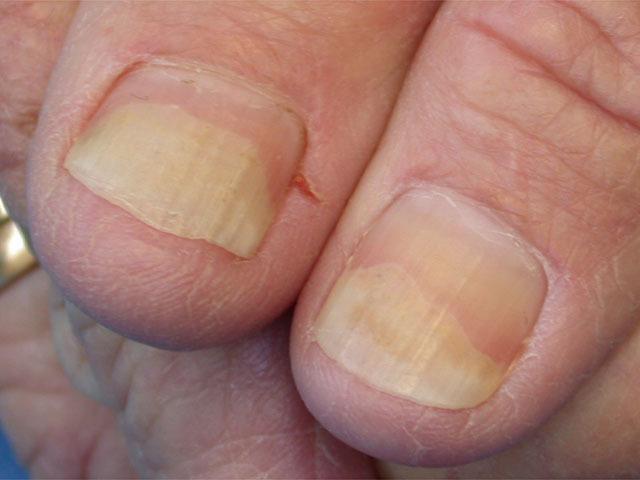 Дистрофия ногтей на руках и ногах с фото: виды, причины и лечение.