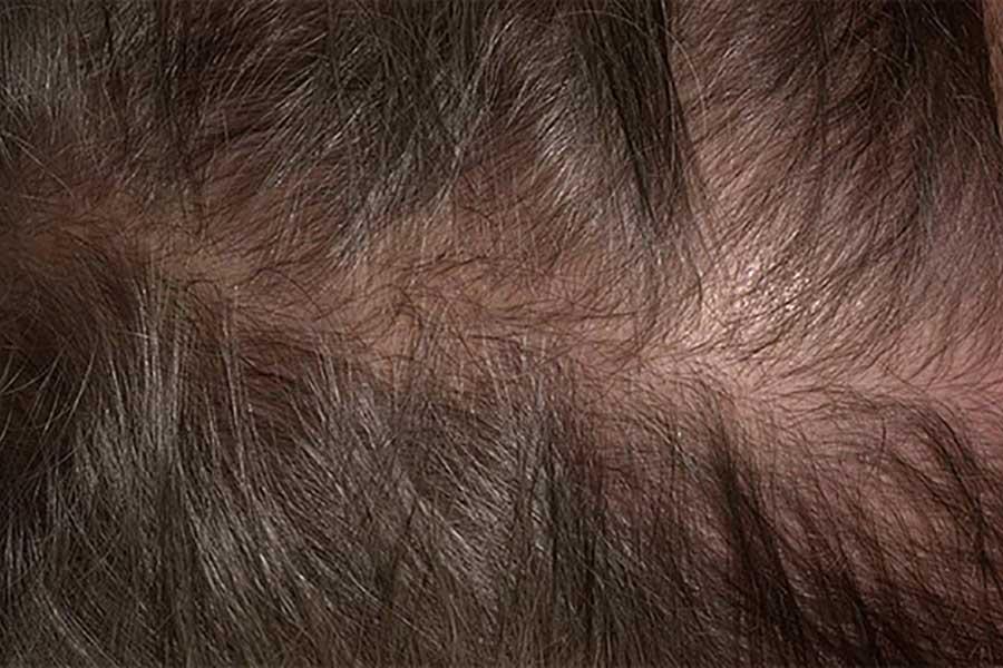 Диффузное выпадение волос у женщин причины и лечение