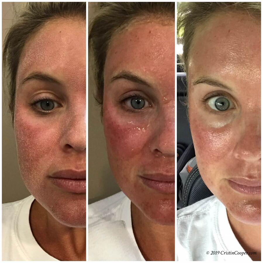 Лазерная шлифовка лица: какие проблемы решает, методика проведения и отзывы пациентов