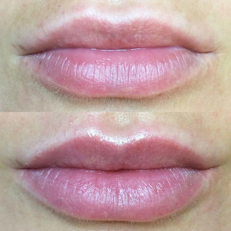 Что нельзя делать после увеличения губ гиалуроновой кислотой