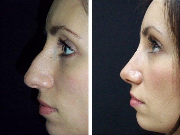 Что такое ринопластика? ринопластика кончика носа