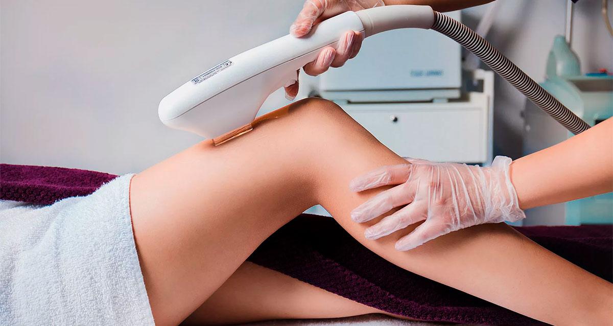 Можно ли делать лазерную эпиляцию летом: влияние солнца на кожу