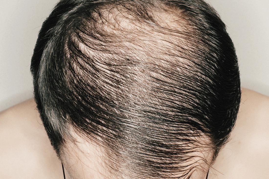 По каким причинам могут выпадать волосы у женщин?