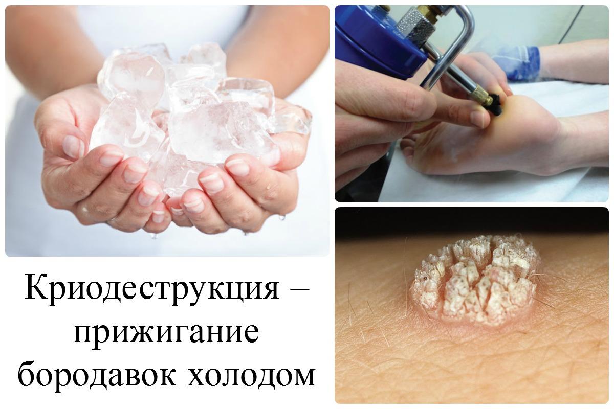Удаление бородавок жидким азотом: методика, отзывы