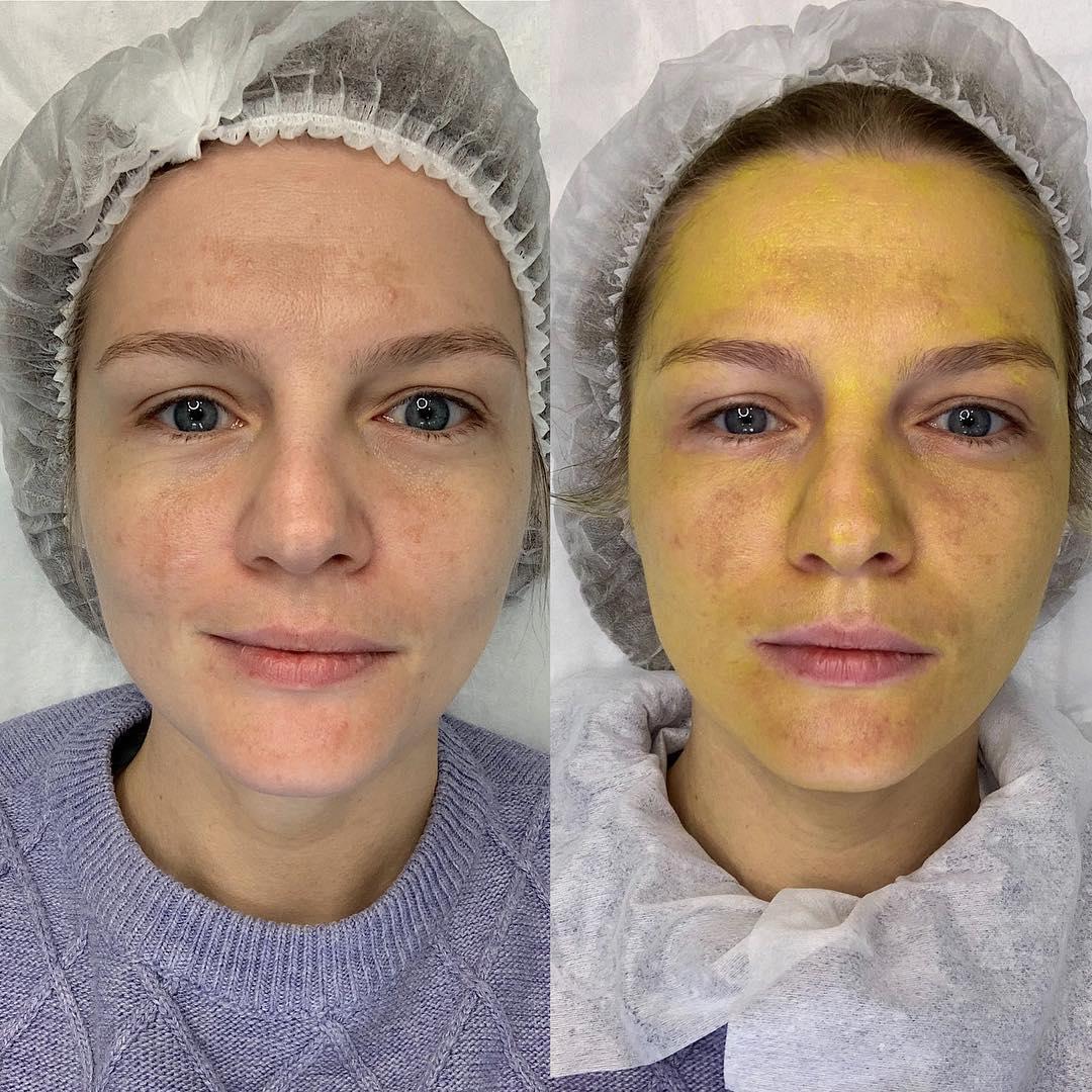Желтый (ретиноевый) пилинг для лица