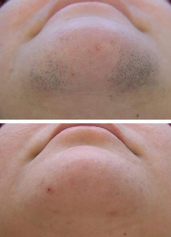Удаление волос с половых губ: особенности депиляции, какой метод самый эффективный?