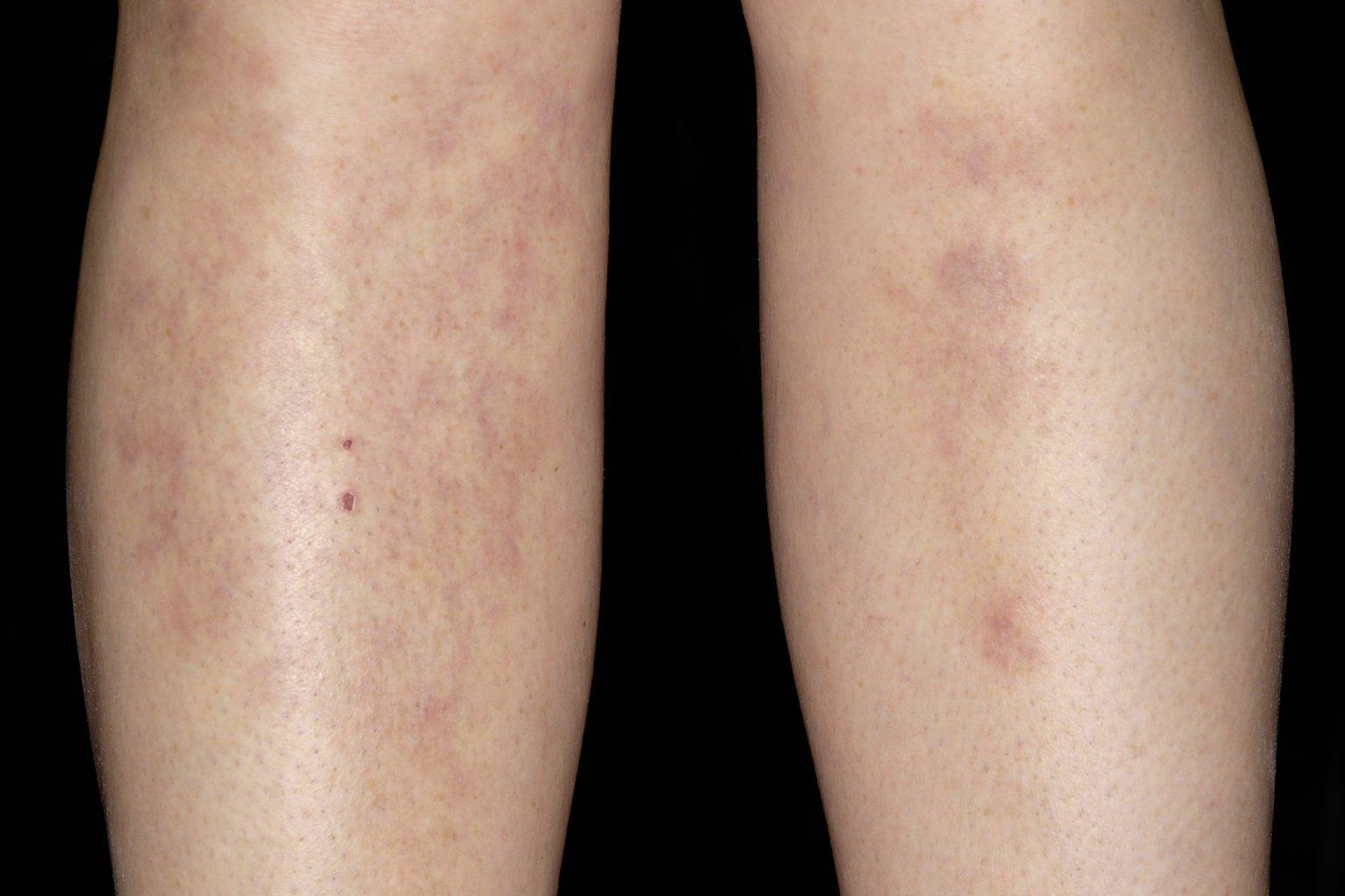 Узловатая эритема на ногах: лечение и профилактика