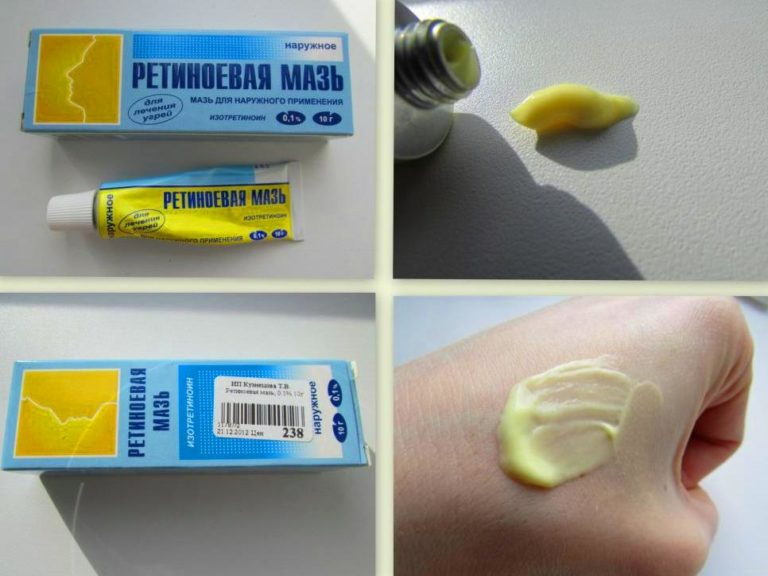 Ретинол для кожи лица: отзывы, принцип действия, как правильно применять, противопоказания