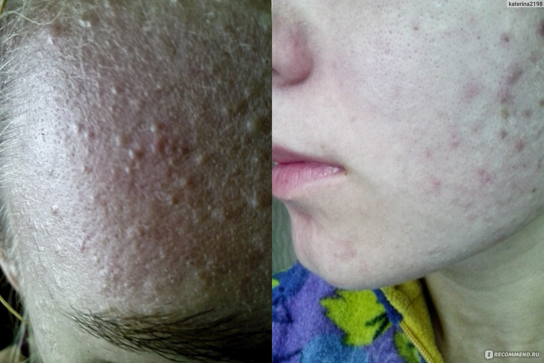 Лечение комедонов на лице: простые способы избавиться от дефекта