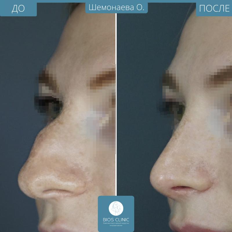 Красивый нос – модели с большим носом. у девушки большой нос. фото. красивые девушки с большим носом