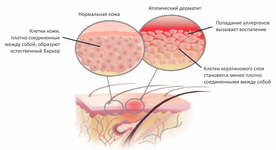 Воздействие сжатого воздуха – прессотерапия: эффект, показания и противопоказания