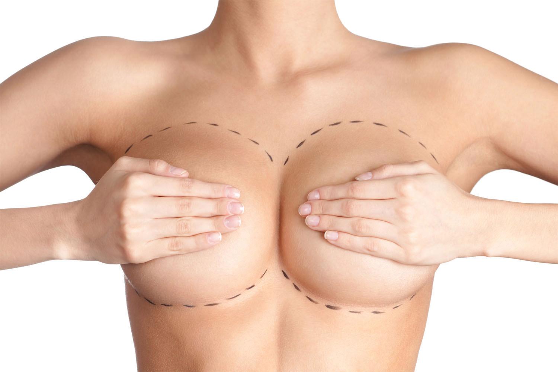 Операция, делающая грудь красивой – маммопластика. виды, техника проведения, нюансы реабилитационного периода