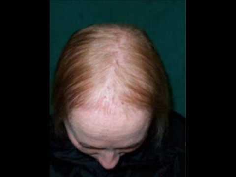 С какими заболеваниями связано выпадение волос на голове