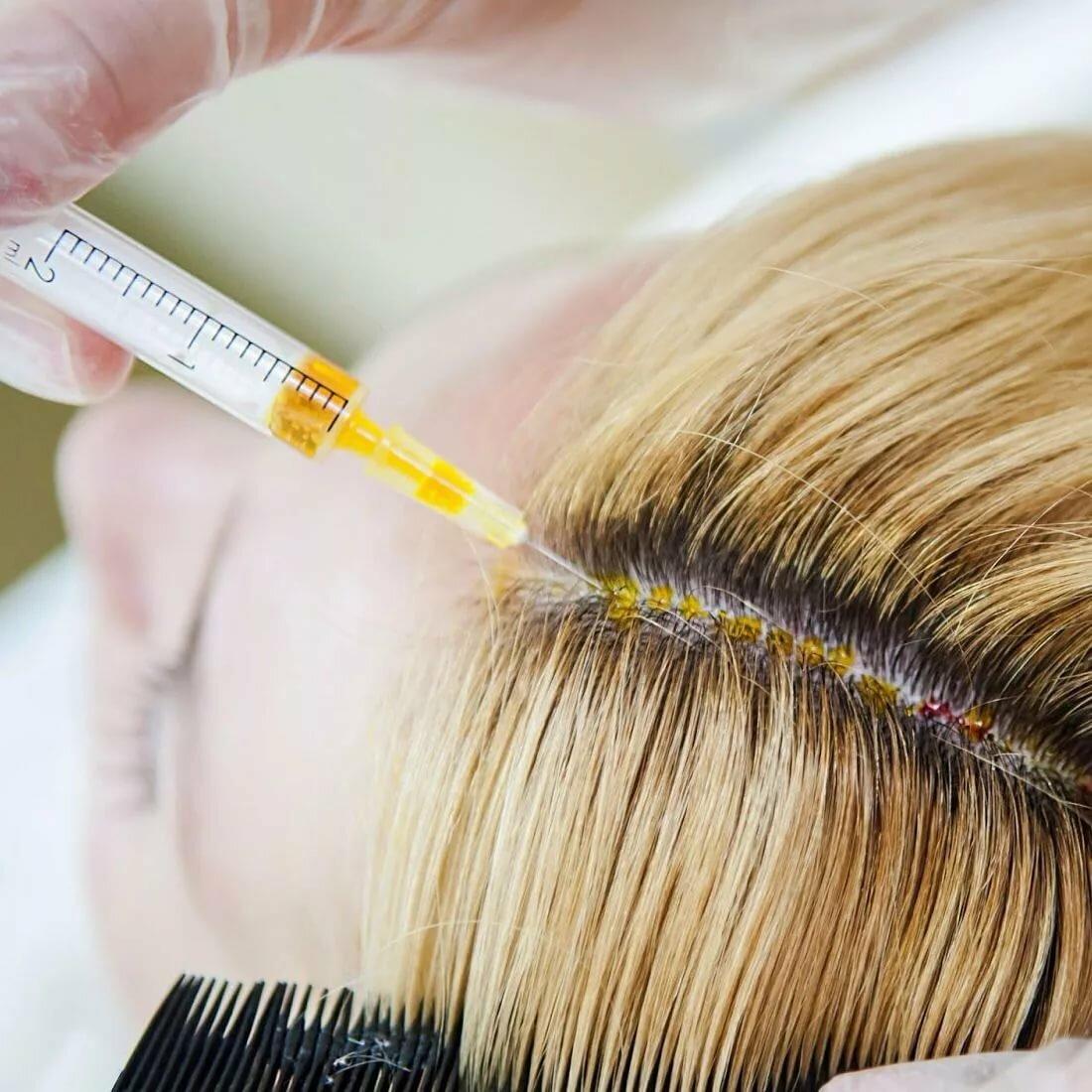 Мезотерапия при проблемах с волосами и кожей головы