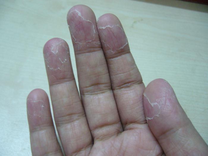 Почему шелушится кожа на ладонях и пальцах рук?