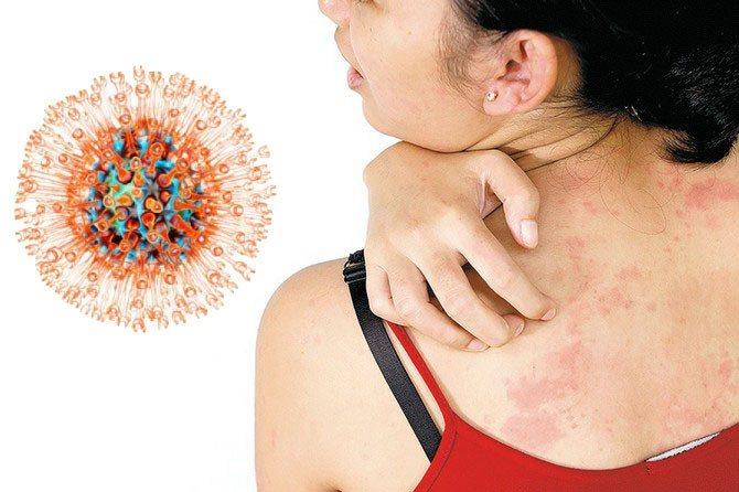 Опоясывающий герпес: симптомы и лечение, фото, лишай на теле, заразен ли, мкб 10