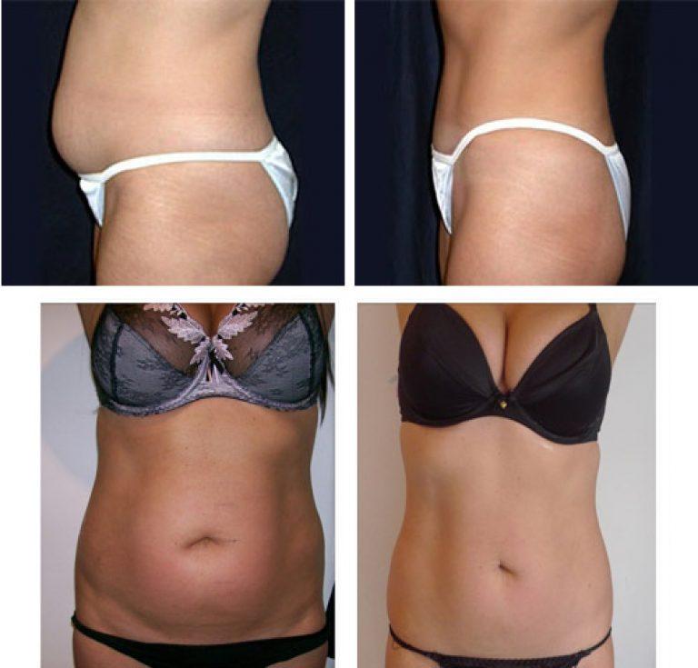 Липосакция живота: фото до и после, как делается процедура, подходит ли она для мужчин, видео отзывы